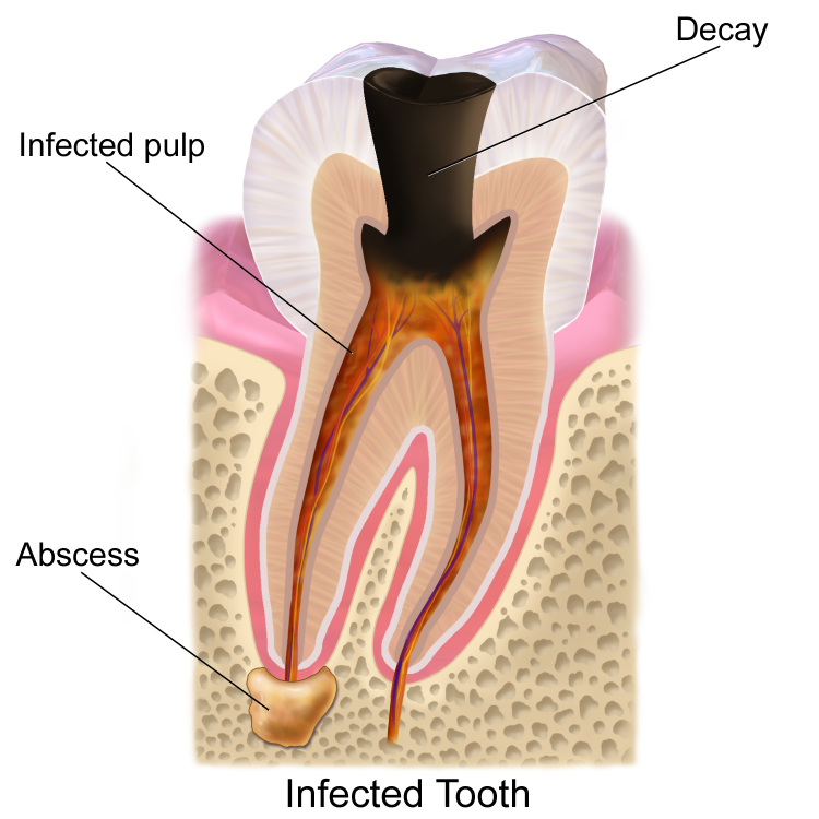 dental decay affecting the dental pulp