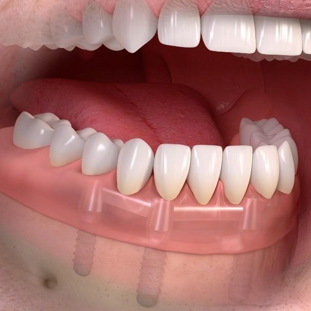 dental implant retained dentures