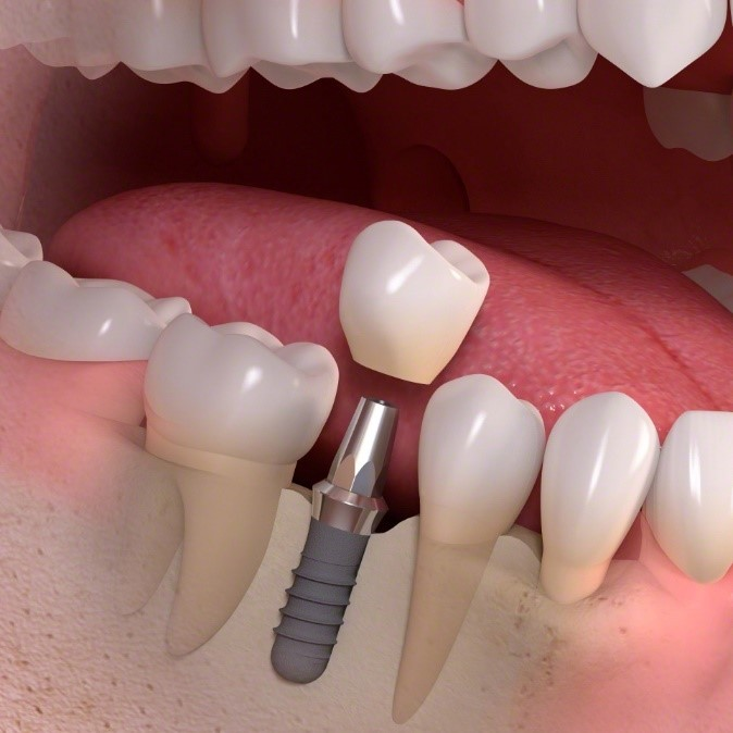 dental implant
